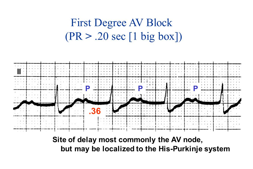 First Degree AV Block (PR > .20 sec [1 big box]) .36 II P P P